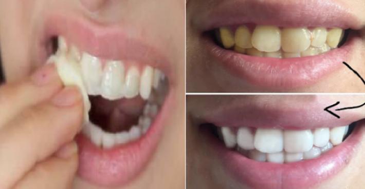 Gigi Kuning Tak Cantik Ini Cara Memutihkan Gigi Pakai 2 Bahan
